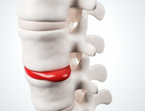 Keď platnička tlačí na nerv: Prvá pomoc, liečba a prevencia