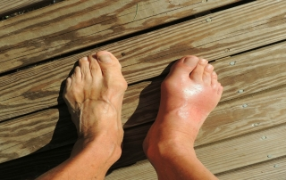 Opuch členkov a starostlivosť o chodidlá