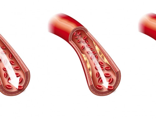 Čo je to trombóza a aké má príznaky?